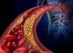 Trigliceridy-500x488