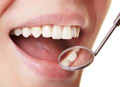 Zubnoy-nalet