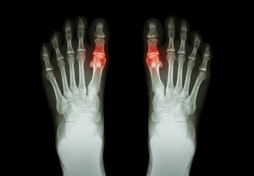 Подагра и суставы пальцев
