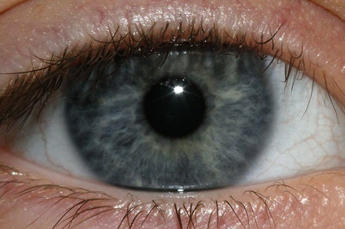 Радужная оболочка глаз