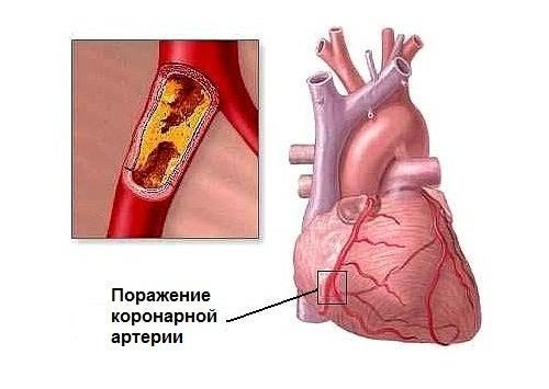 Здоровое сердце:  8 факторов риска