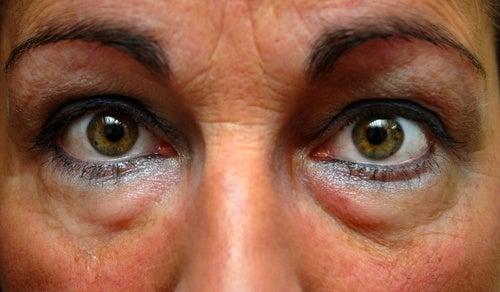 Мешки под глазами: как с ними бороться?