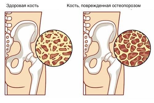 8 продуктов, которые помогут предотвратить остеопороз!