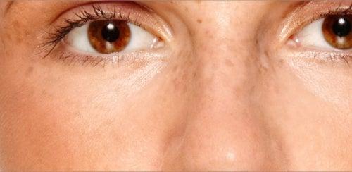 Как избавиться от пигментных пятен и сделать цвет лица более ровным?