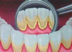 зубной-камень