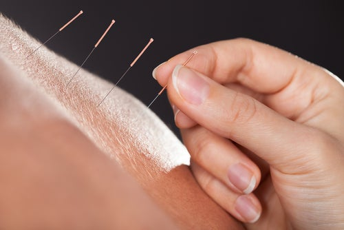 Акупунктура поможет облегчить симптомы менопаузы