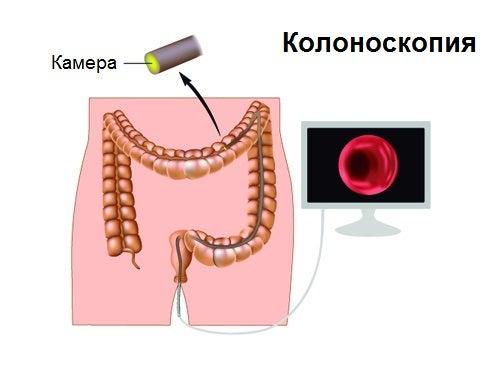 Симптомы рака толстой кишки и колоноскопия