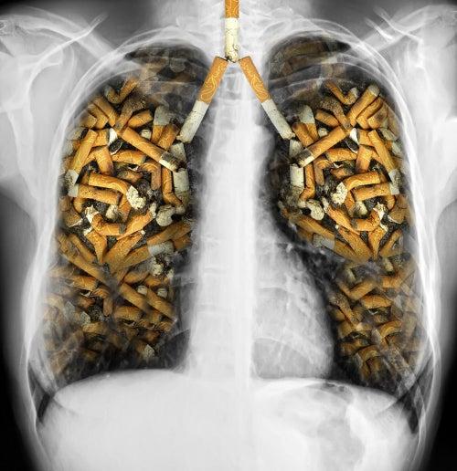 Lyogkie-sigarety