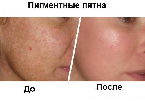 Pyatna-na-kozhe