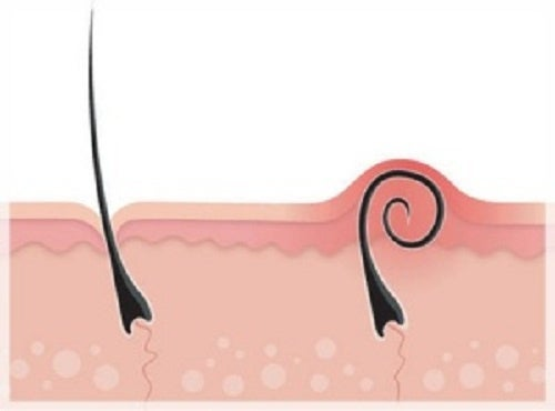 Вросшие волоски: как предотвратить их появление