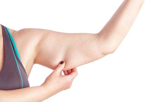 дряблость кожи рук и ног