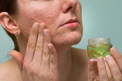 Народные средства против рубцов и шрамов