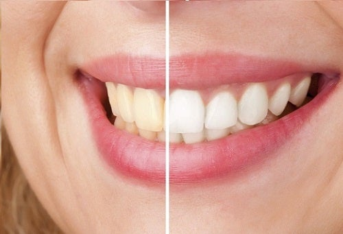 5 натуральных средств для сохранения белизны зубов