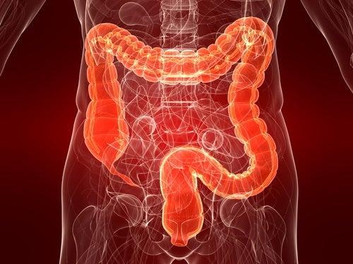 Симптомы и лечение раздраженного кишечника у женщин