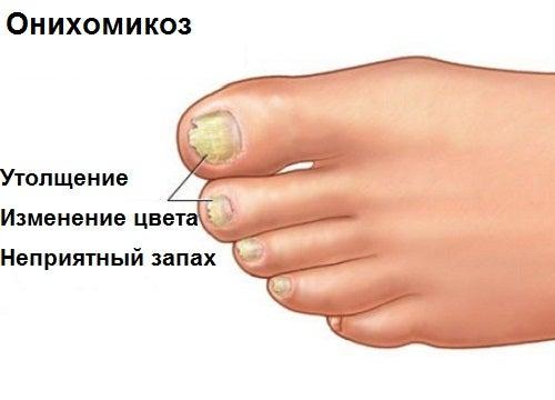 Онихомикоз: что делать с грибком на ногах?