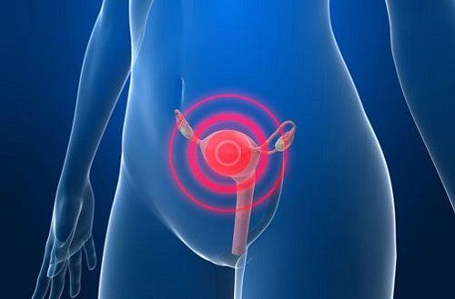 Симптомы и признаки рака матки и шейки матки