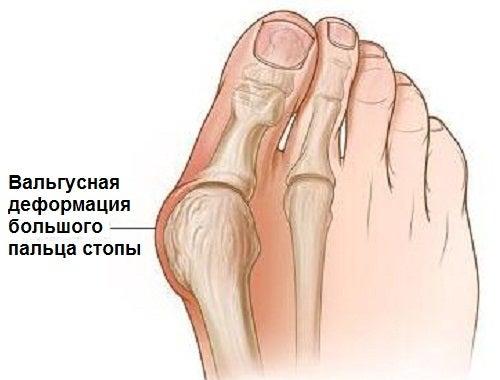 Почему происходит вальгусная деформация стопы?