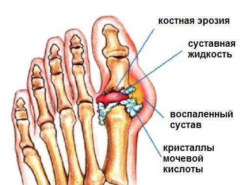 Отложение солей мочевой кислоты в суставах причины эффективный гель для суставов