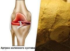 lechit-artroz-naturalnimi-sredstvami