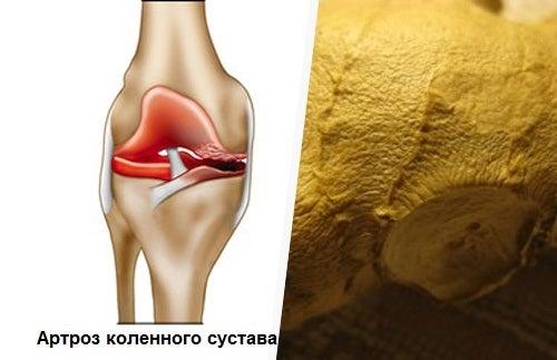 Как снять боль при артрозе коленного сустава в домашних условиях