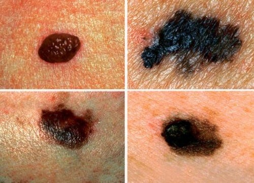 Как вовремя распознать рак кожи?