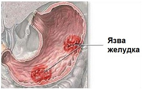 Причины и основные признаки язвы желудка