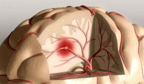 Последствия недосыпания и риск развития инсульта