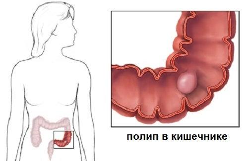 Симптомы полипов в толстом кишечнике