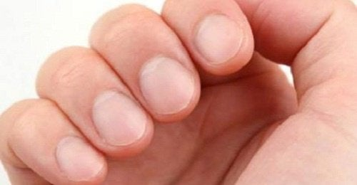 Состояние ногтей как показатель здоровья человека