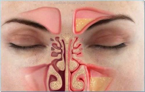 Как снять заложенность носа в домашних условиях!