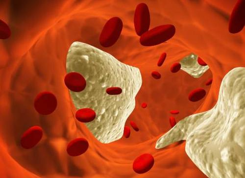 7 мифов о холестерине