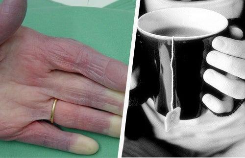 Почему у меня холодные руки: возможные причины, о которых нужно знать!