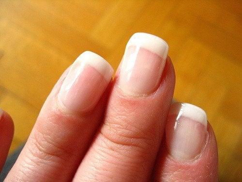 Состояние ногтей и здоровье человека