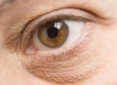 Мешки под глазами