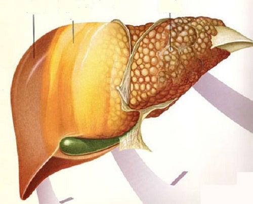 Фрукты при ожирении печени
