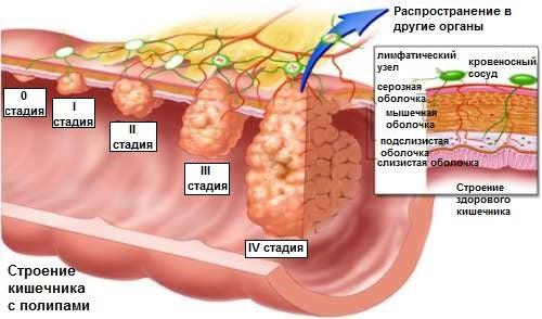 Полипы в толстом кишечнике