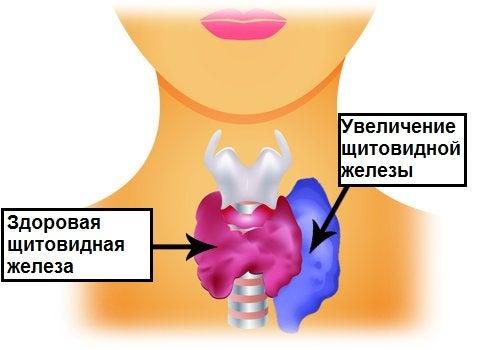Проблемы щитовидной железы и тиреотоксикоз