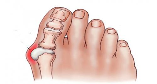 """Как избавиться от """"шишки"""" на большом пальце стопы?"""