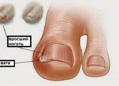 Вросший ноготь и пальцы ног