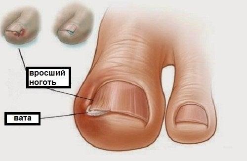 Вросшие ногти и пальцы ног
