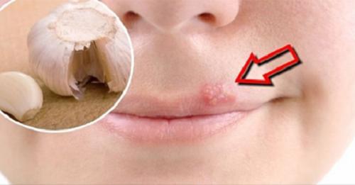 Домашние средства для лечения герпеса на губах