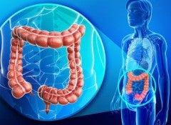 Избыточный вес и кишечник