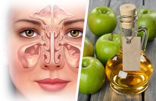 Синусит и яблочный уксус