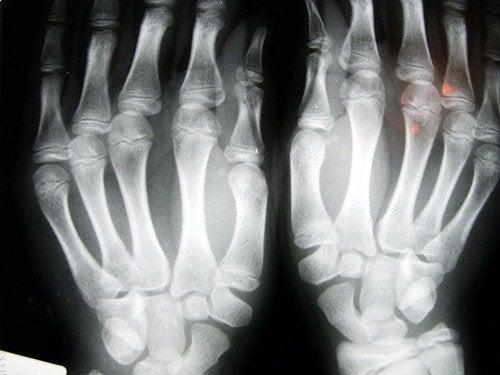 пальцы на рентгене