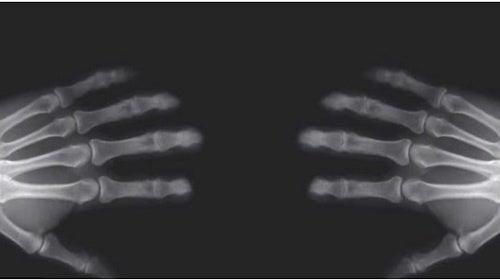 Опасно ли иметь привычку «хрустеть» пальцами?