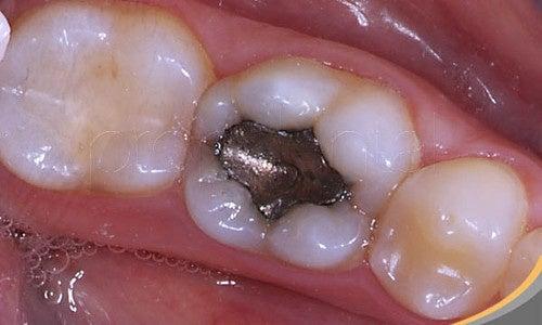 Почему пломбы из ртути вредны для здоровья?