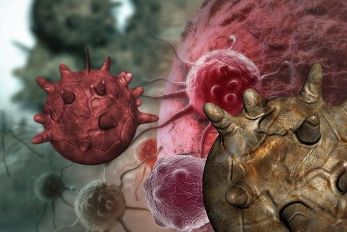 Симптомы рака яичников