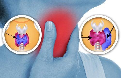 Аномалии щитовидной железы
