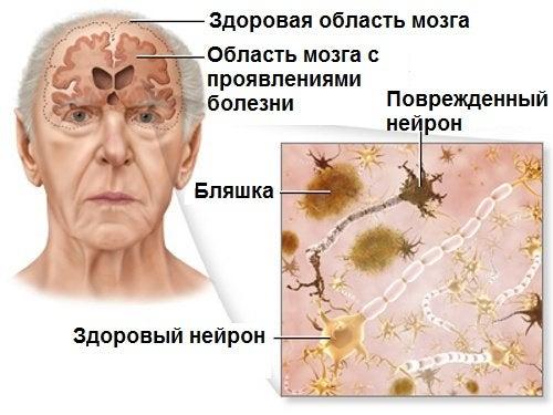 Профилактика болезни Альцгеймера: 5 рекомендаций