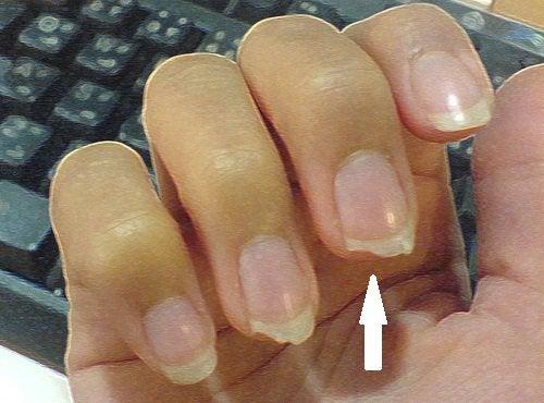 К чему приводит привычка грызть ногти
